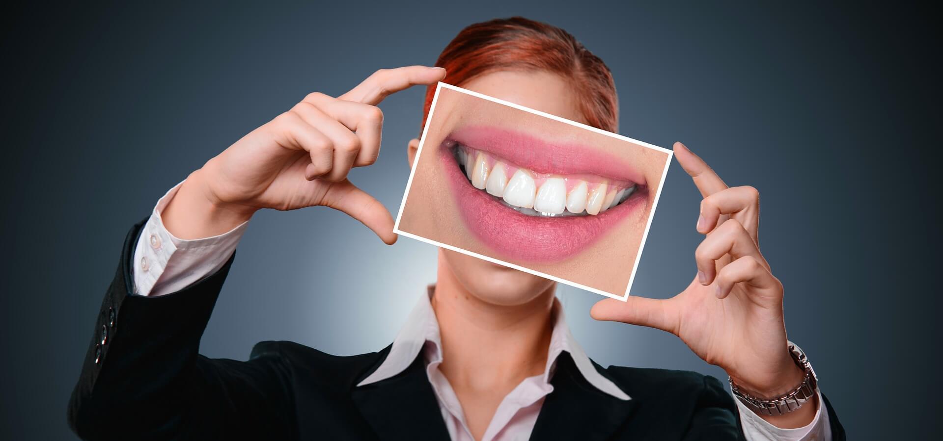 Verschönerung der Zähne